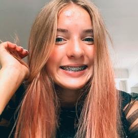 ChloeChvx