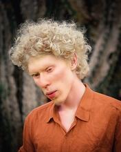 Recherche mannequins hommes et femmes Albinos pour agence mode