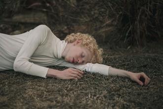 Recherche H/F Albinos 18 à 50 ans pour clip musical